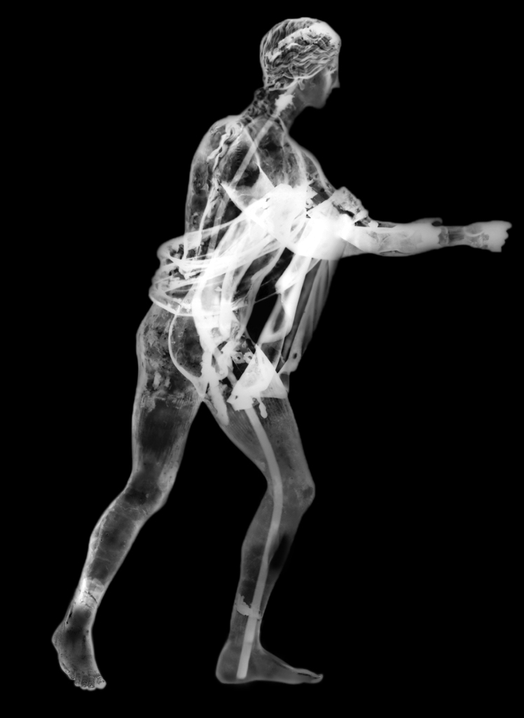 2009 X-ray of Apollo as an Archer (The Apollo Saettante), Roman, 100 B.C.—before A.D. 79. Courtesy of the Soprintendenza Speciale per i Beni Archeologici di Napoli e Pompei.